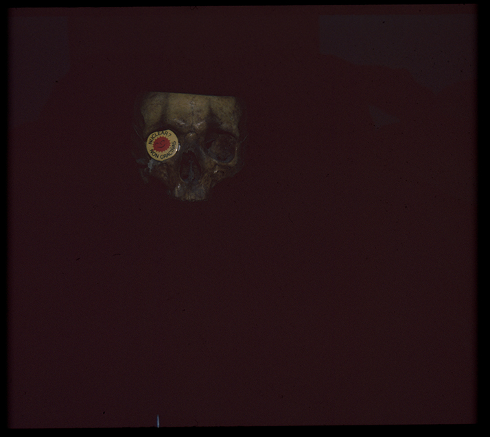 Os medos/Les pors/Los miedos/Fears: II, III. Diapositiva original.